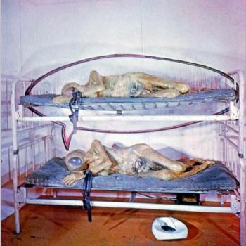 31. Ед Кінхольц. Державна лікарня